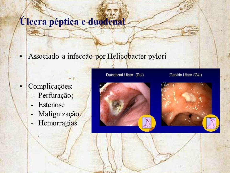 Úlcera péptica e duodenal