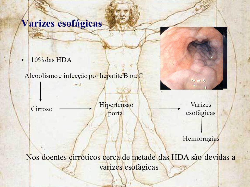 Varizes esofágicas 10% das HDA. Alcoolismo e infecção por hepatite B ou C. Hipertensão portal. Varizes esofágicas.