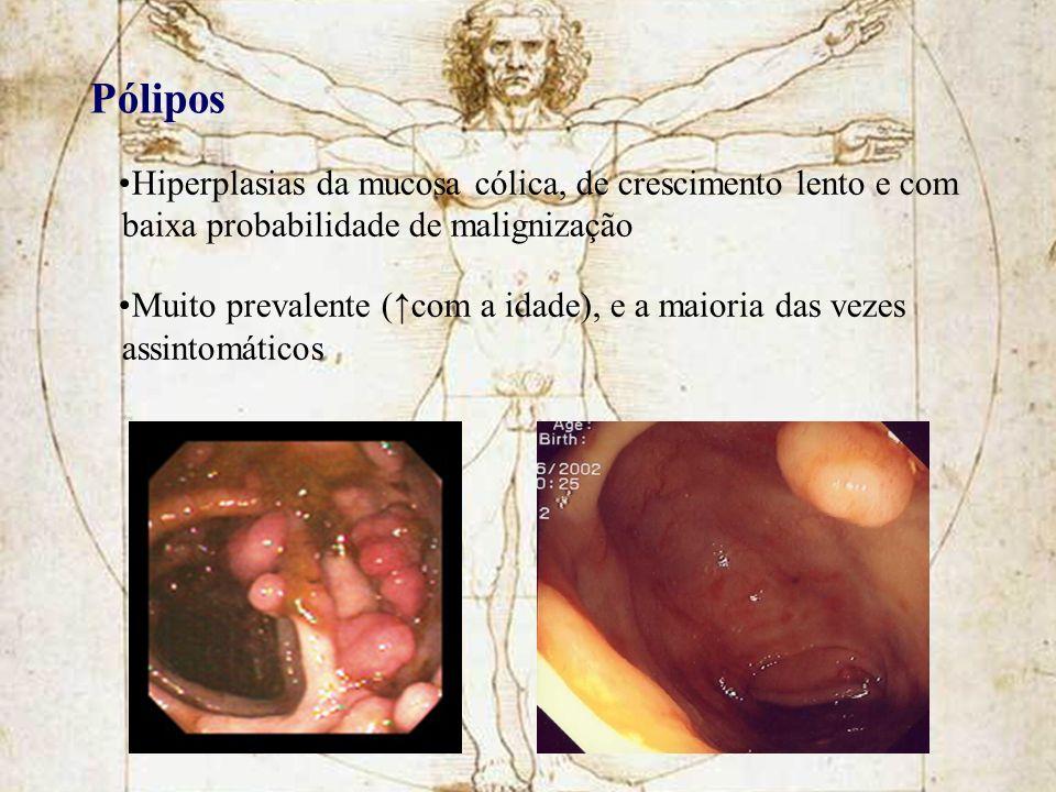 Pólipos Hiperplasias da mucosa cólica, de crescimento lento e com baixa probabilidade de malignização.