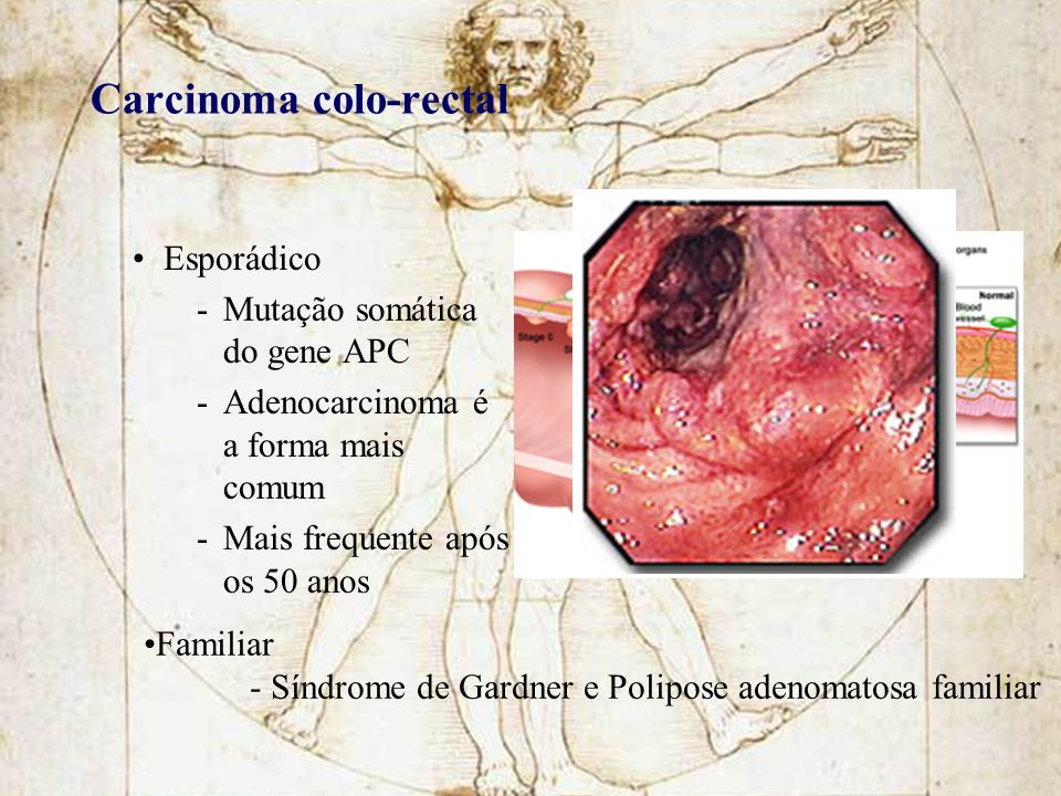 Carcinoma colo-rectal