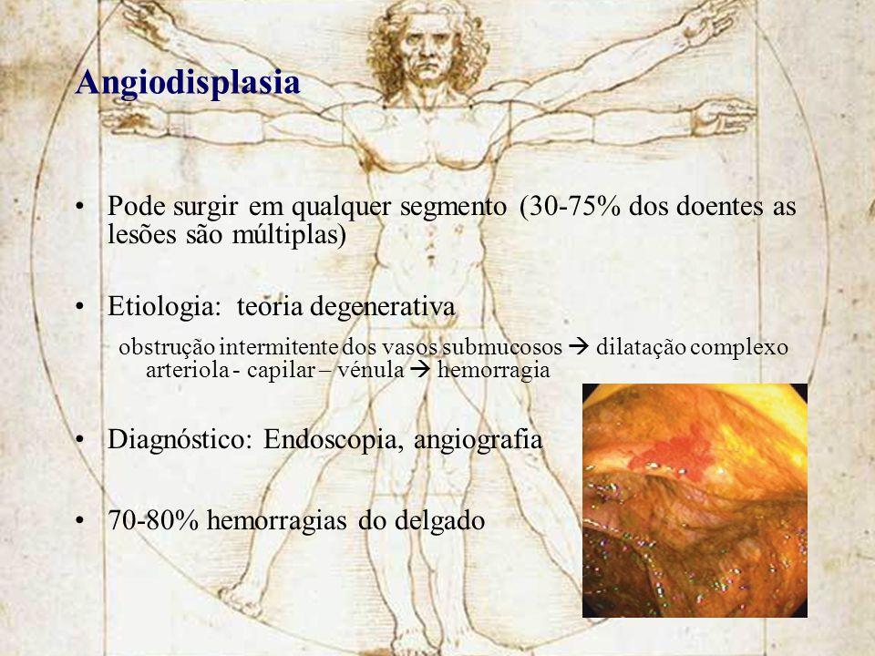 Angiodisplasia Pode surgir em qualquer segmento (30-75% dos doentes as lesões são múltiplas) Etiologia: teoria degenerativa.