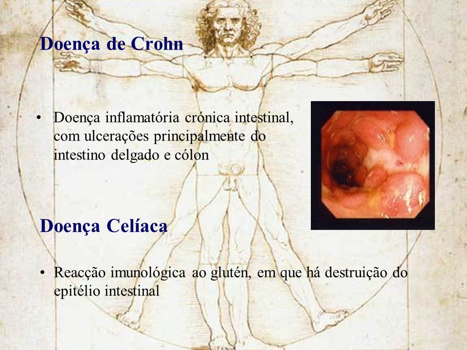 Doença de Crohn Doença Celíaca