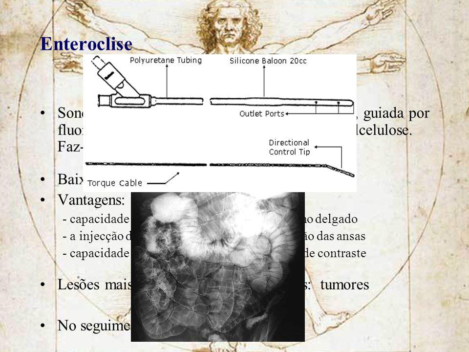 Enteroclise