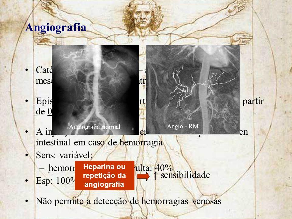 Heparina ou repetição da angiografia