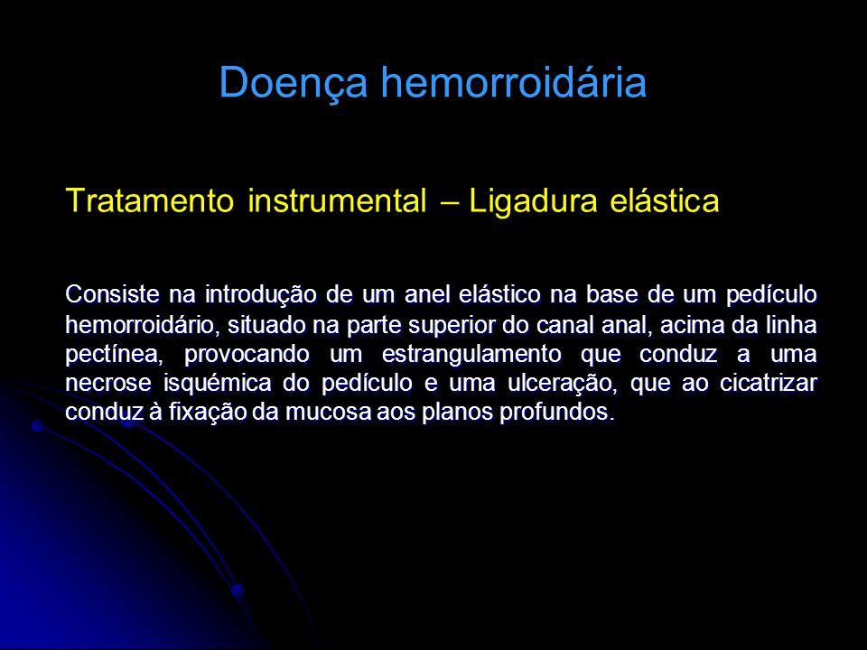 Doença hemorroidária Tratamento instrumental – Ligadura elástica