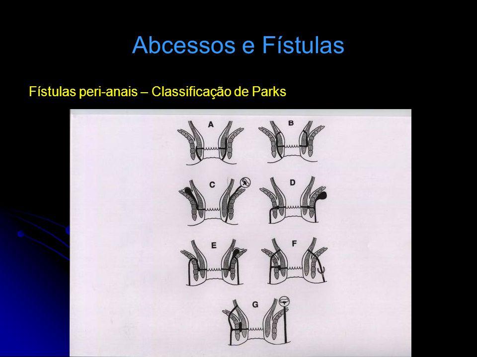 Abcessos e Fístulas Fístulas peri-anais – Classificação de Parks