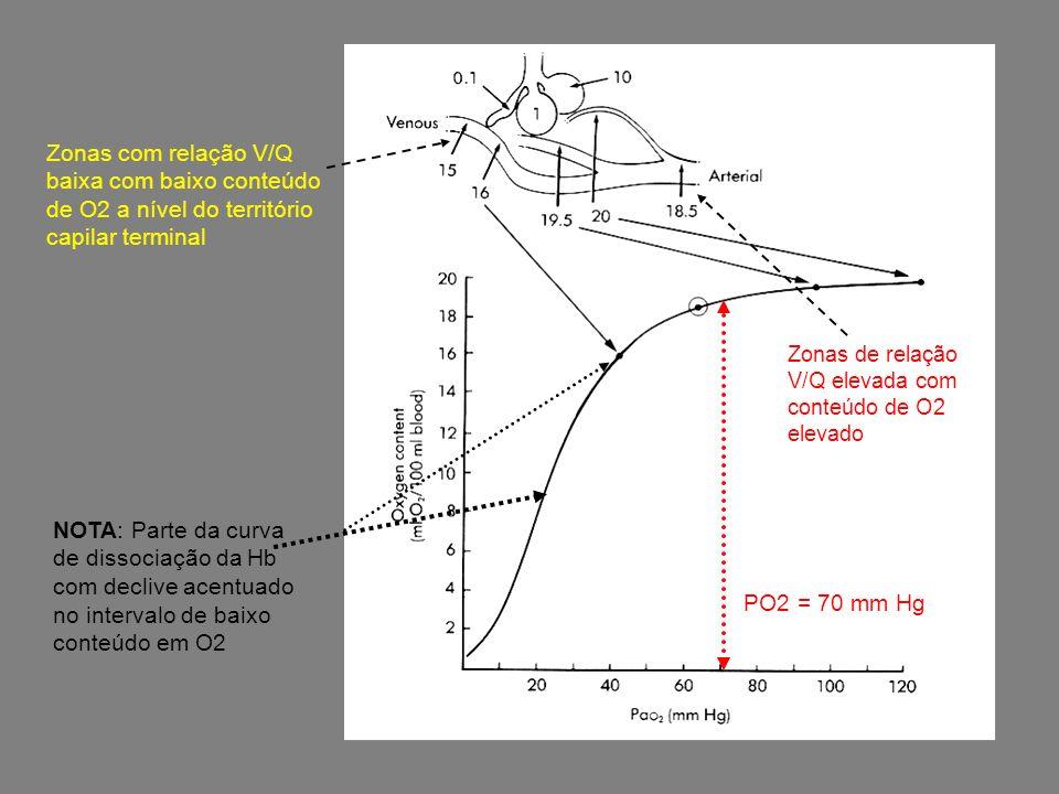 Zonas com relação V/Q baixa com baixo conteúdo de O2 a nível do território capilar terminal