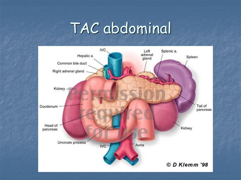 TAC abdominal