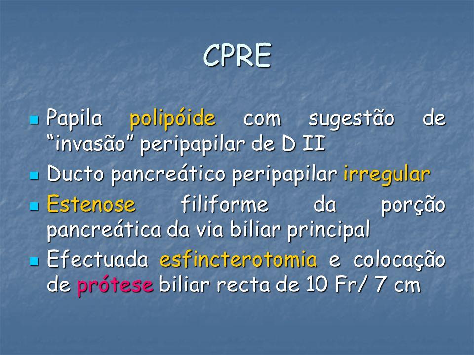 CPRE Papila polipóide com sugestão de invasão peripapilar de D II