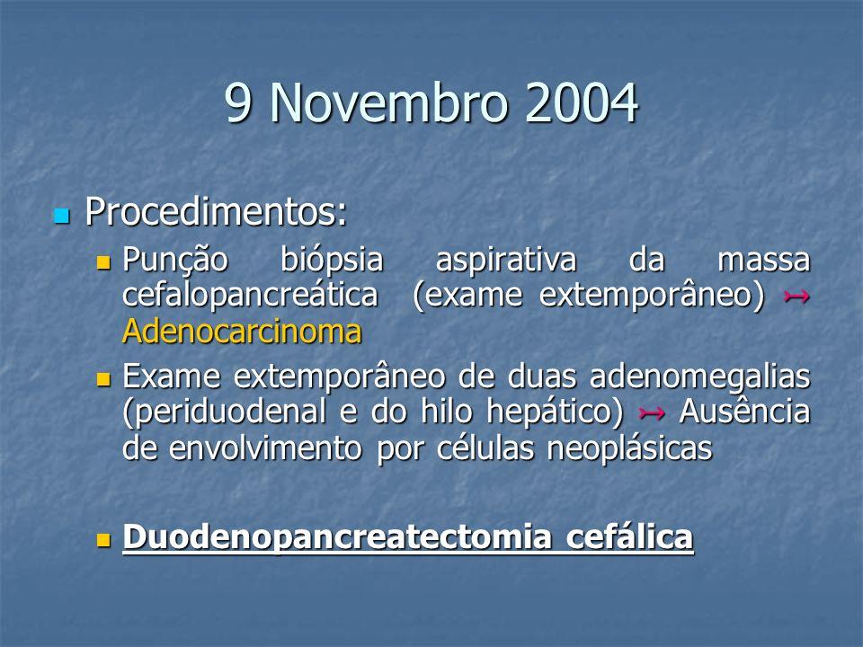 9 Novembro 2004 Procedimentos: