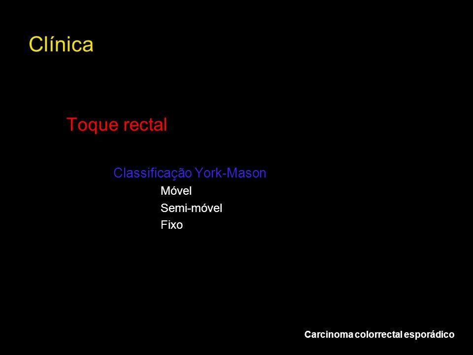 Clínica Toque rectal Classificação York-Mason Móvel Semi-móvel Fixo