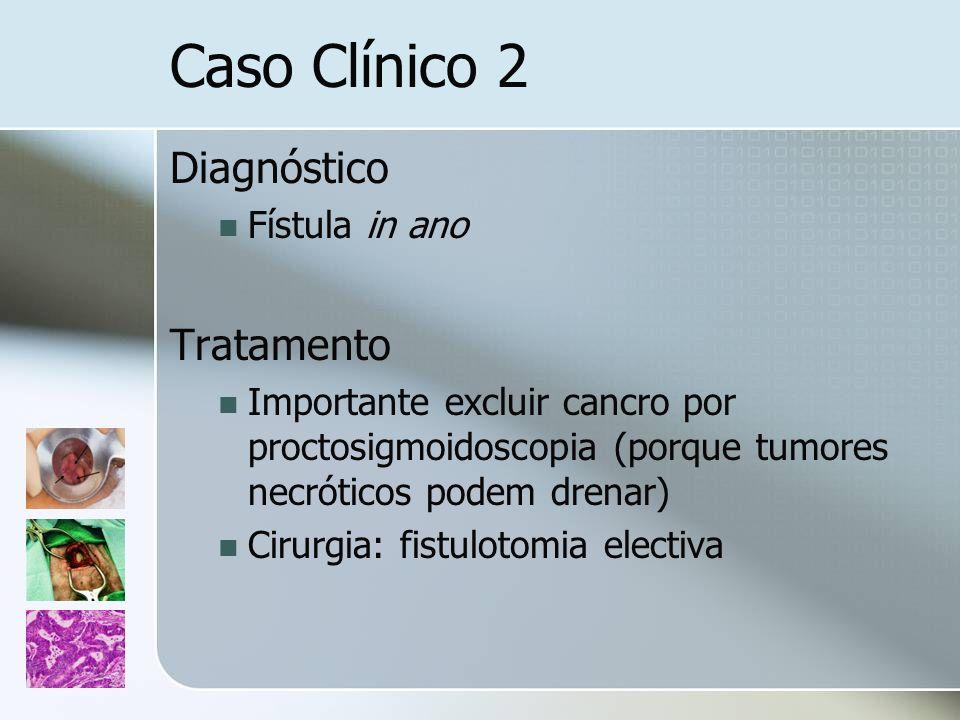 Caso Clínico 2 Diagnóstico Tratamento Fístula in ano