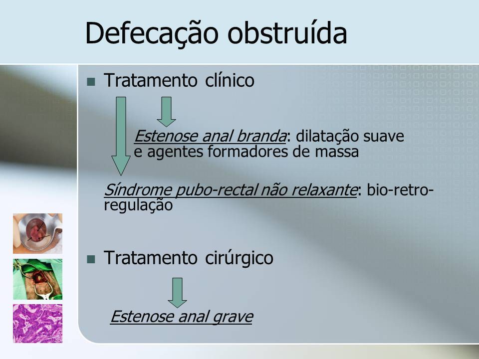 Defecação obstruída Tratamento clínico Tratamento cirúrgico