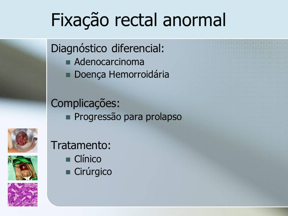 Fixação rectal anormal