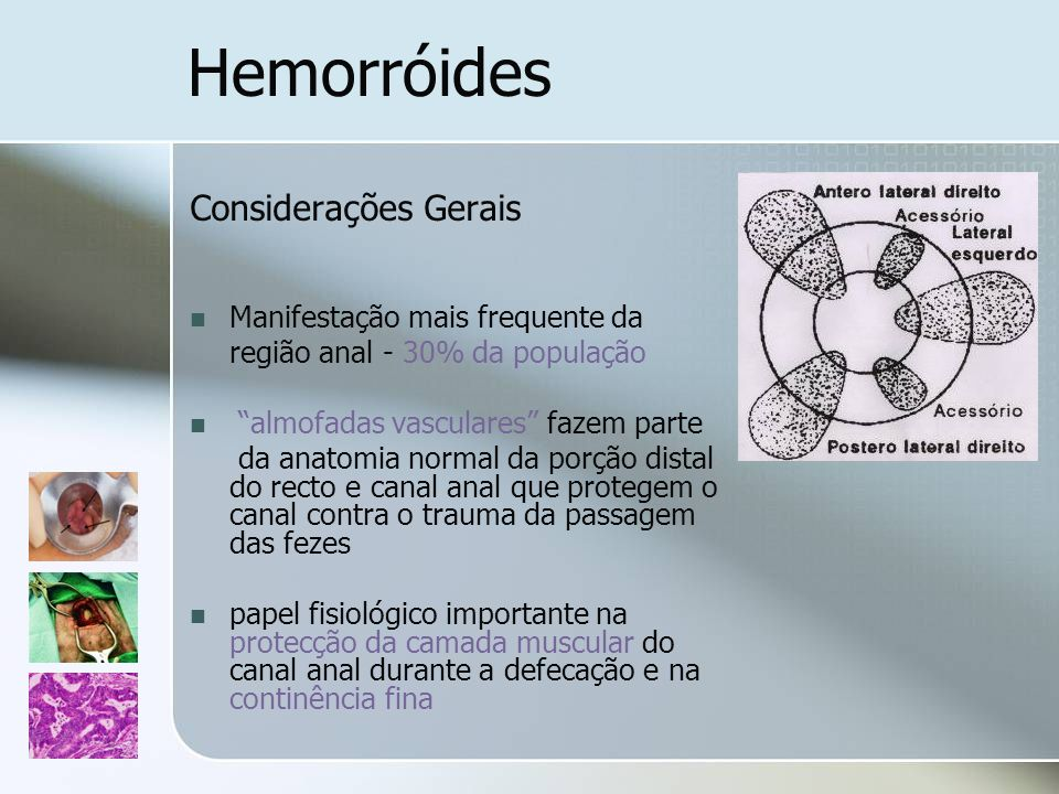 Hemorróides Considerações Gerais Manifestação mais frequente da