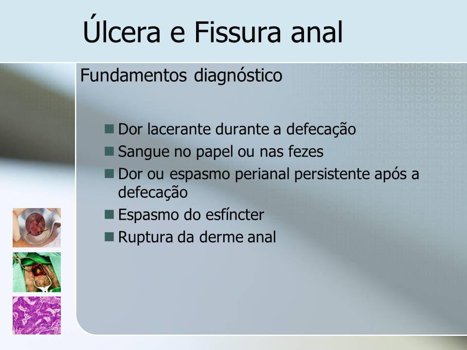 Úlcera e Fissura anal Fundamentos diagnóstico