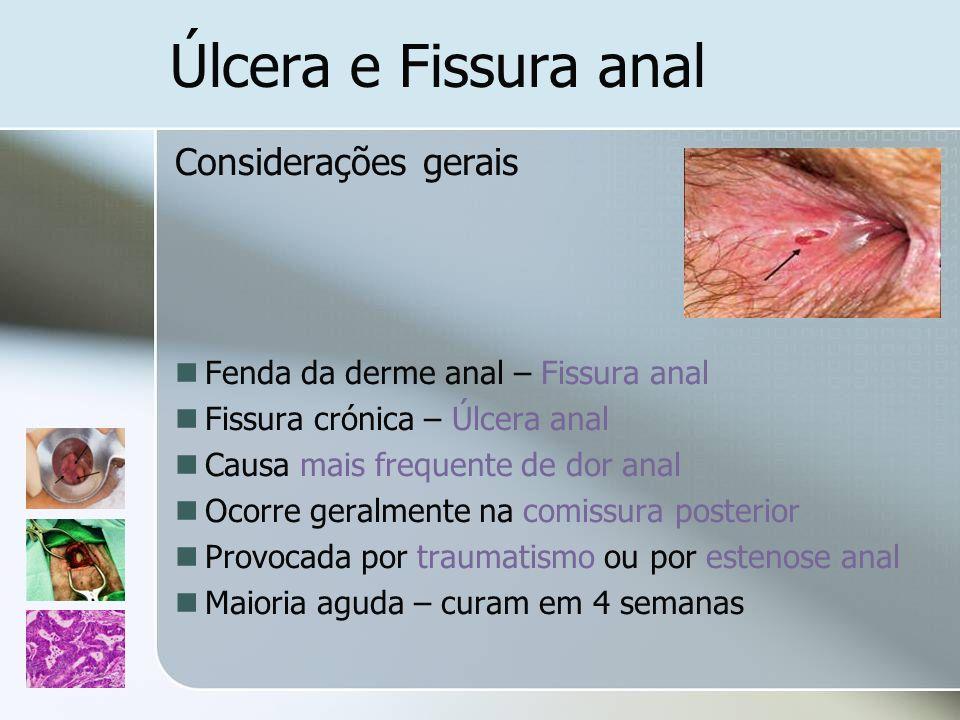 Úlcera e Fissura anal Considerações gerais