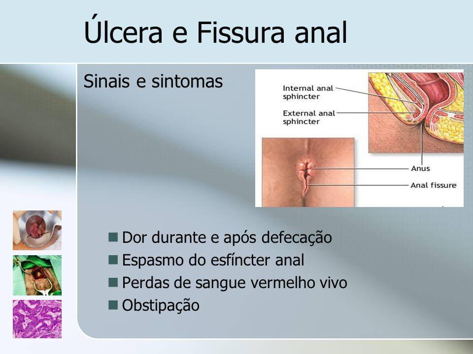 Úlcera e Fissura anal Sinais e sintomas Dor durante e após defecação