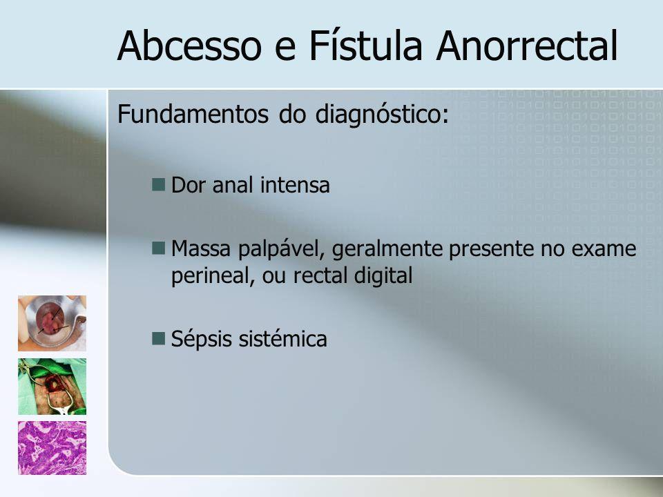 Abcesso e Fístula Anorrectal