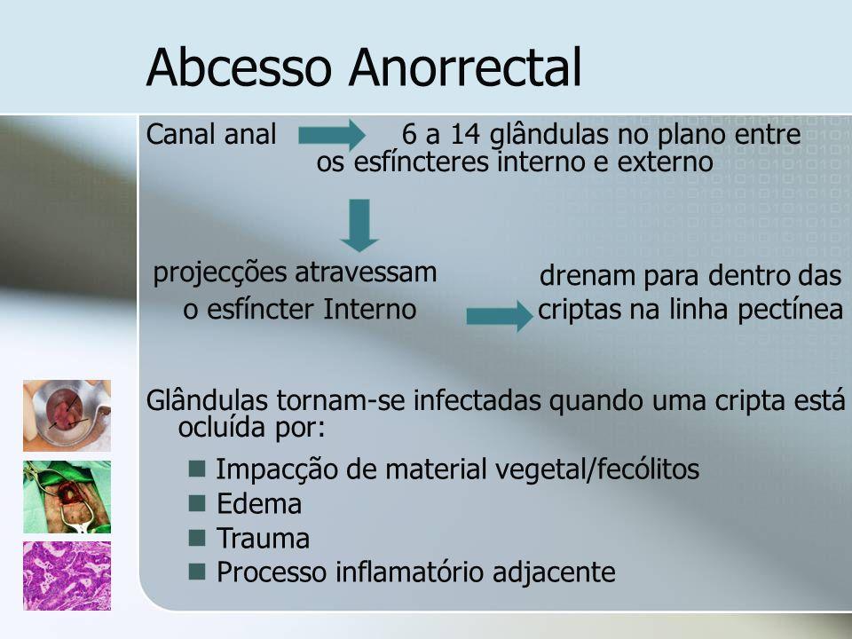 Abcesso Anorrectal Canal anal 6 a 14 glândulas no plano entre os esfíncteres interno e externo.