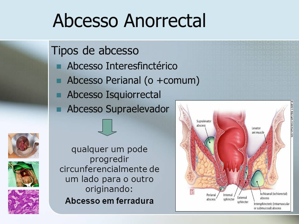 Abcesso Anorrectal Tipos de abcesso Abcesso Interesfinctérico