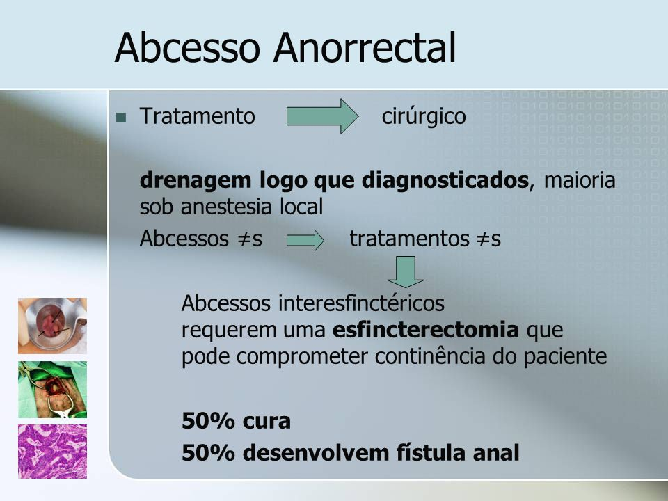 Abcesso Anorrectal Tratamento cirúrgico