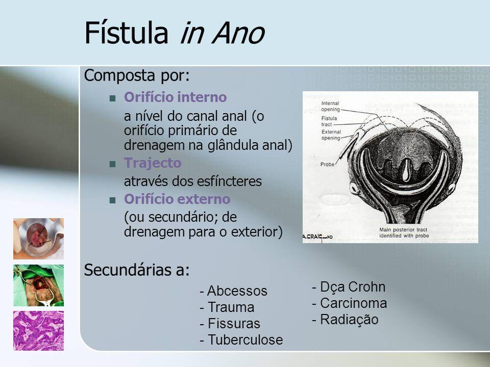 Fístula in Ano Composta por: Secundárias a: Orifício interno