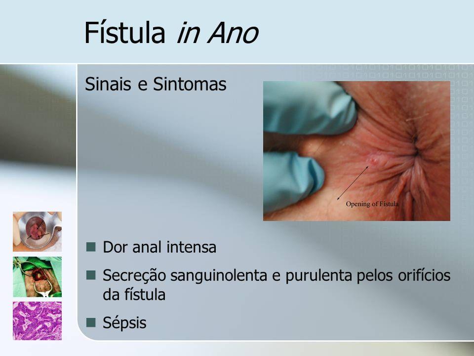 Fístula in Ano Sinais e Sintomas Dor anal intensa