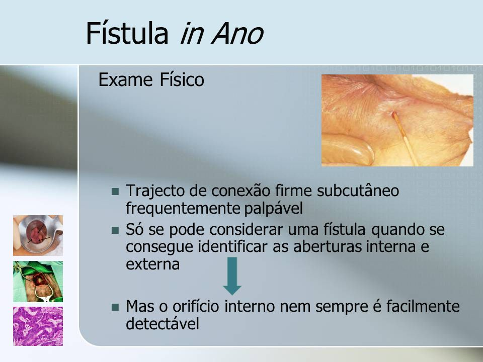 Fístula in Ano Exame Físico