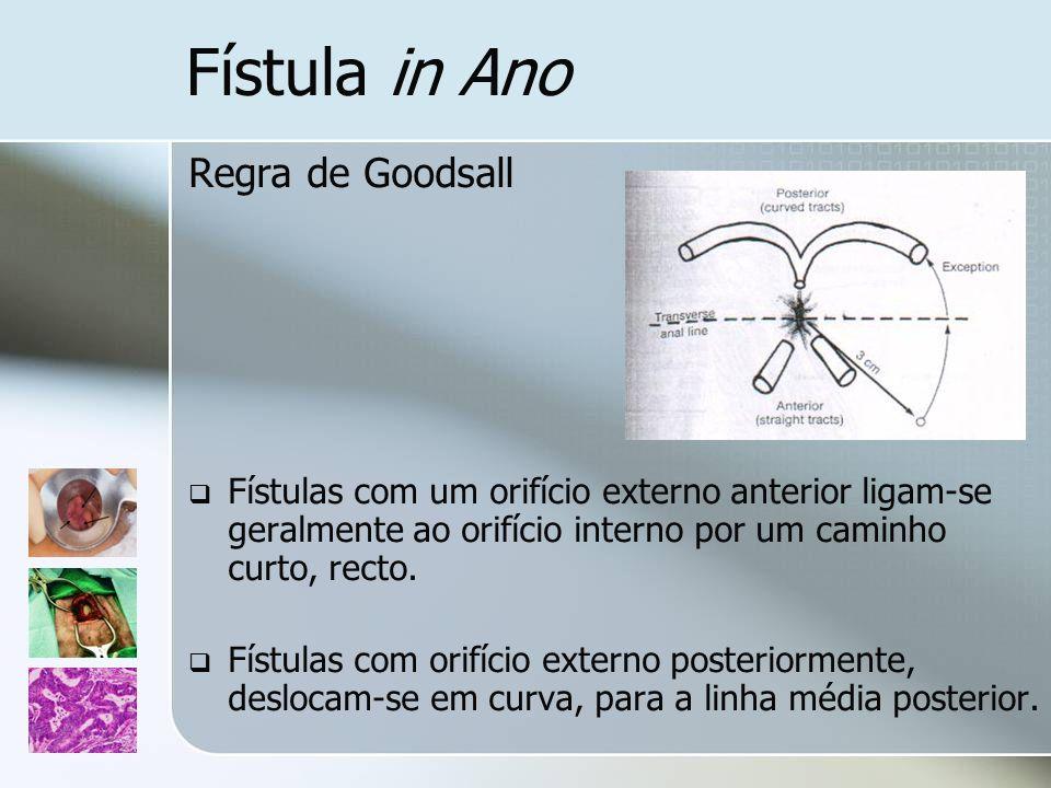 Fístula in Ano Regra de Goodsall
