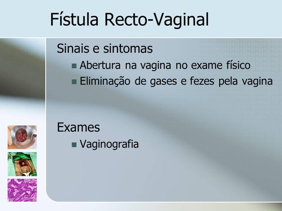 Fístula Recto-Vaginal