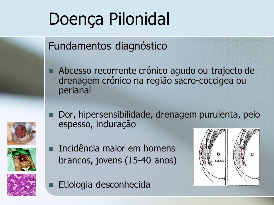 Doença Pilonidal Fundamentos diagnóstico