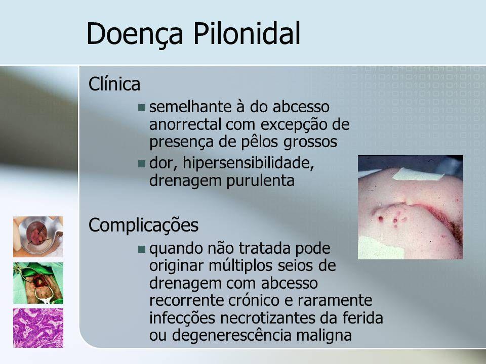 Doença Pilonidal Clínica Complicações