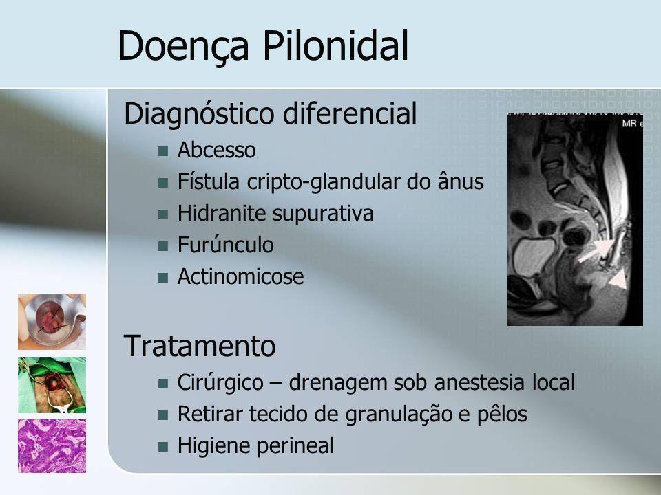 Doença Pilonidal Diagnóstico diferencial Tratamento Abcesso