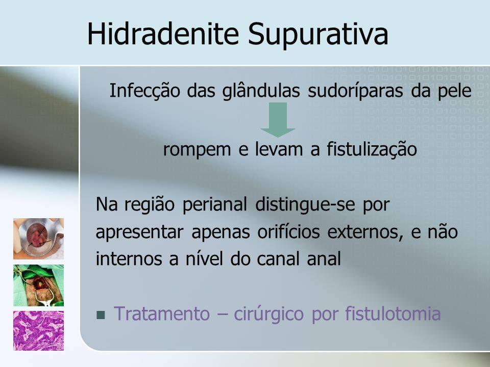 Hidradenite Supurativa