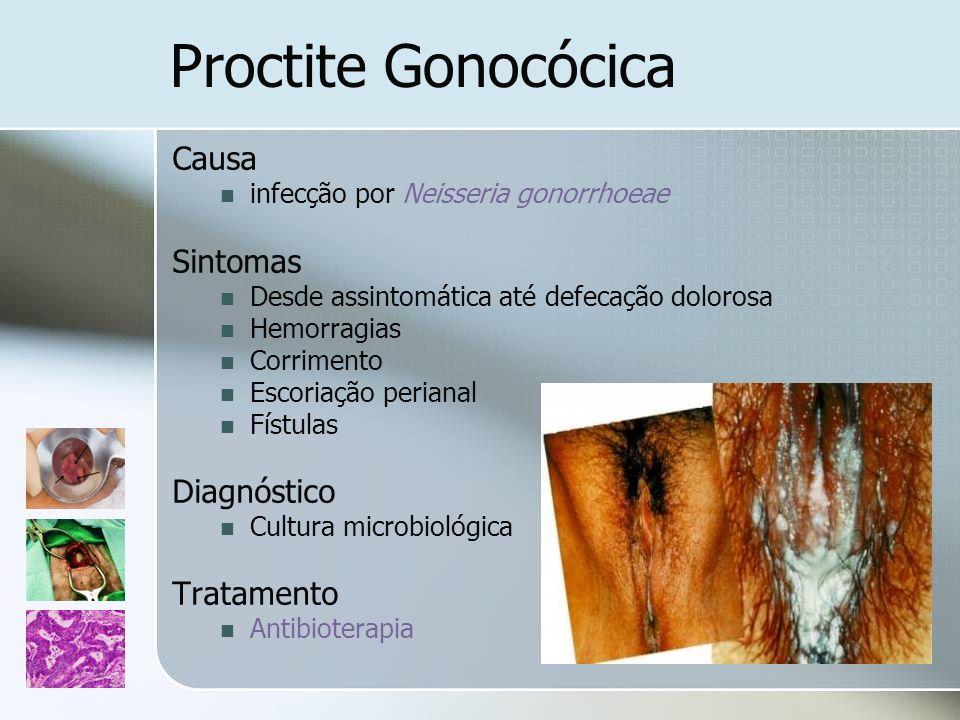 Proctite Gonocócica Causa Sintomas Diagnóstico Tratamento