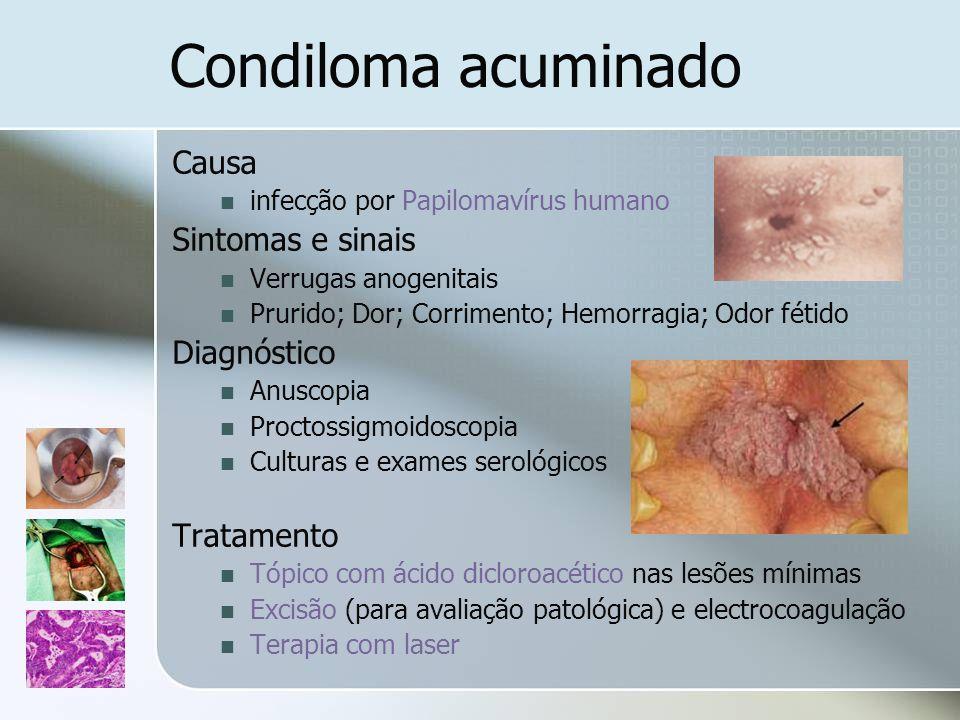 Condiloma acuminado Causa Sintomas e sinais Diagnóstico Tratamento