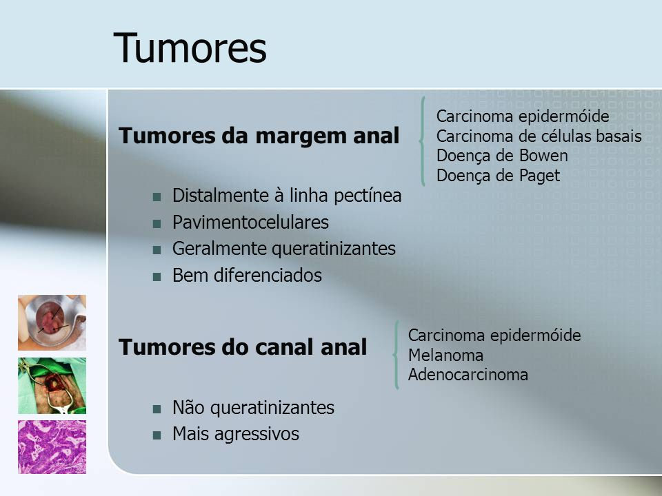 Tumores Tumores da margem anal Tumores do canal anal