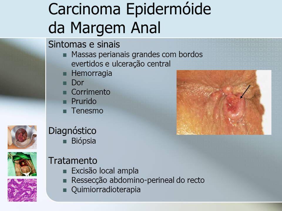 Carcinoma Epidermóide da Margem Anal