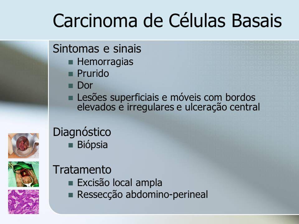 Carcinoma de Células Basais