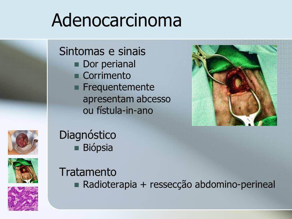 Adenocarcinoma Sintomas e sinais Diagnóstico Tratamento Dor perianal