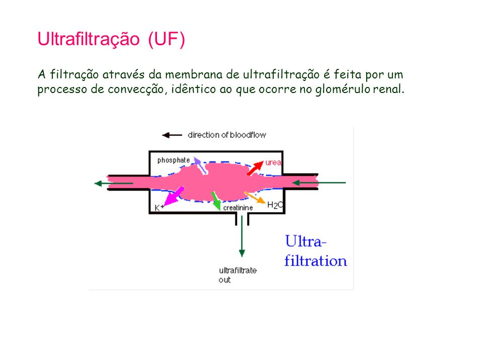Tetralogy of Fallot 21.9.98. Ultrafiltração (UF)