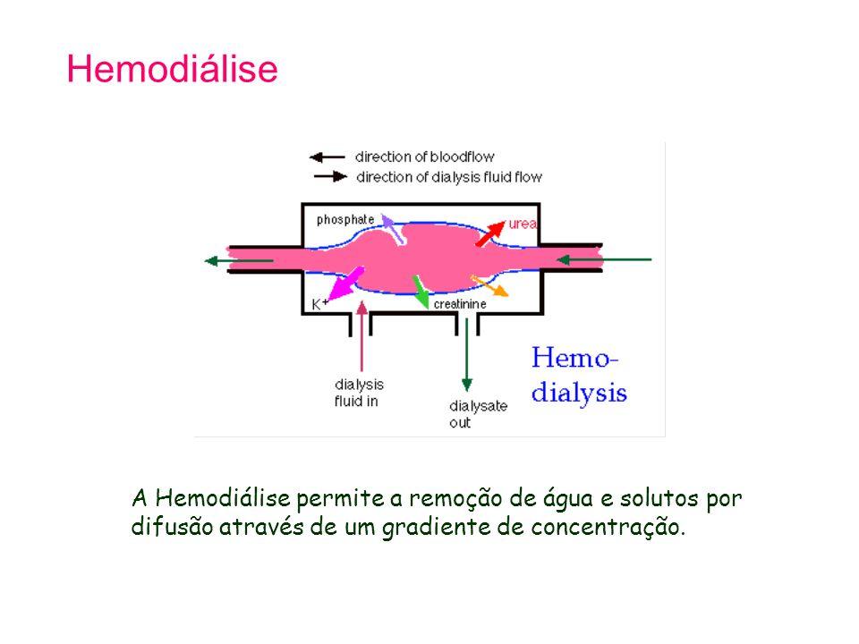 Tetralogy of Fallot 21.9.98. Hemodiálise. A Hemodiálise permite a remoção de água e solutos por difusão através de um gradiente de concentração.