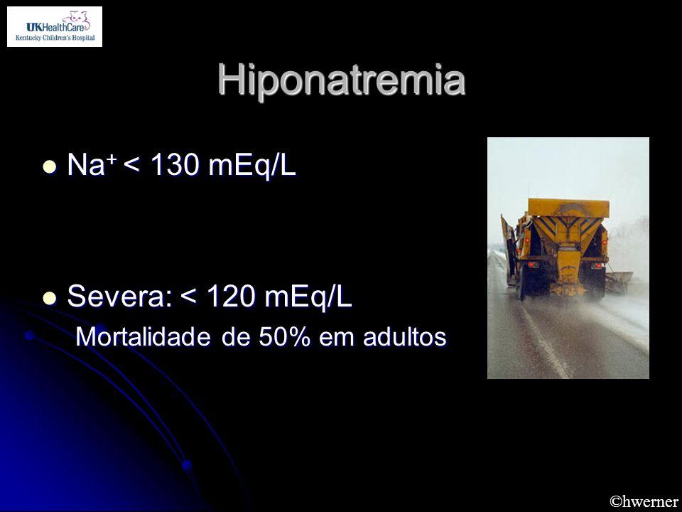 Hiponatremia Na+ < 130 mEq/L Severa: < 120 mEq/L