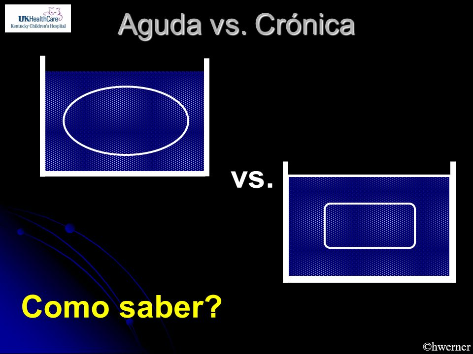 Aguda vs. Crónica vs. Como saber