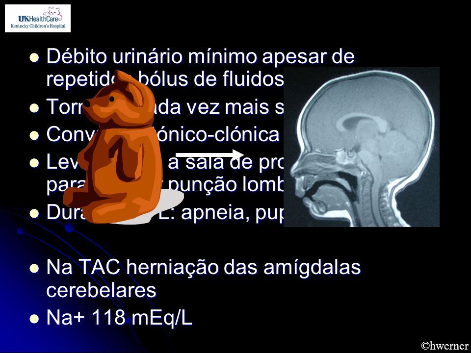Débito urinário mínimo apesar de repetidos bólus de fluidos