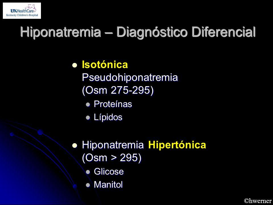 Hiponatremia – Diagnóstico Diferencial