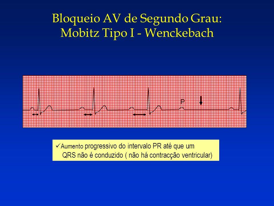 Bloqueio AV de Segundo Grau: Mobitz Tipo I - Wenckebach