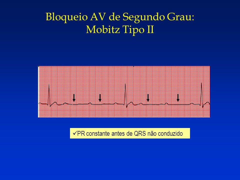 Bloqueio AV de Segundo Grau: Mobitz Tipo II