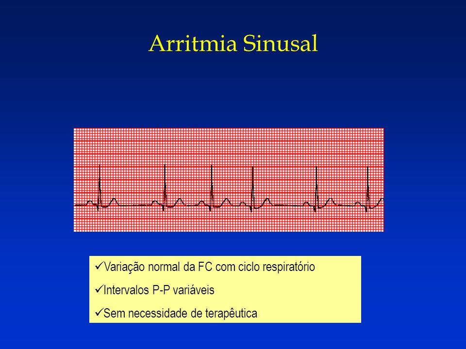 Arritmia Sinusal Variação normal da FC com ciclo respiratório